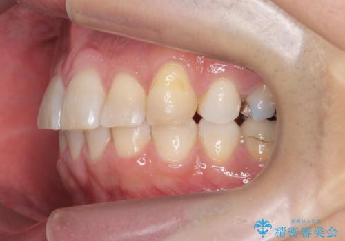 前歯だけ治したい インビザライン・ライト 30代男性の治療後