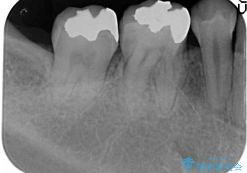 銀歯を白く セラミックインレー治療の治療前
