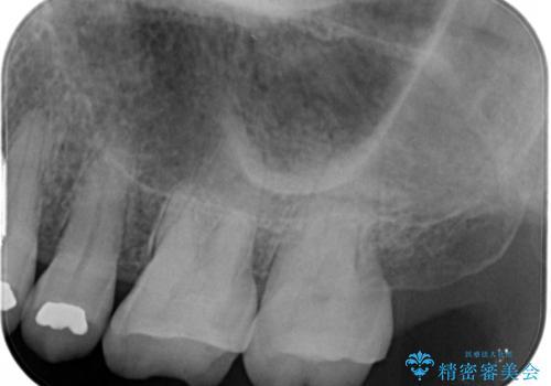 大きな詰め物を被せ物に変えて、歯の破折リスクを減らすの治療前