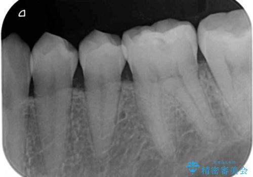 海外赴任前に気になる虫歯を治療したいの治療前