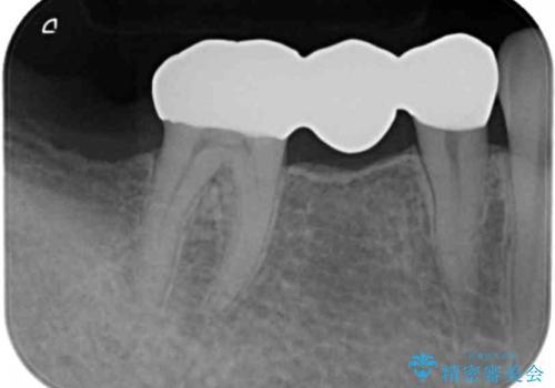 歯が折れた 低予算でオールセラミックのブリッジ 20代女性の治療後