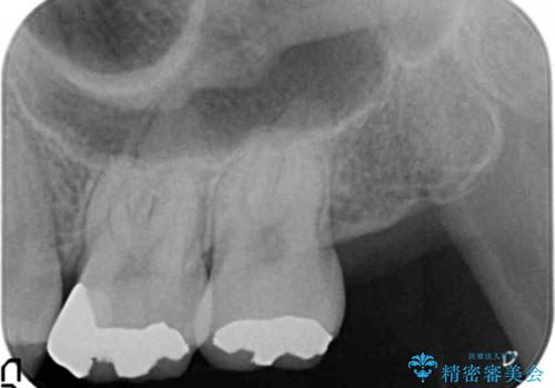 [ 矯正治療後のセラミック治療 ]  セラミックインレーで銀歯を白くの治療前