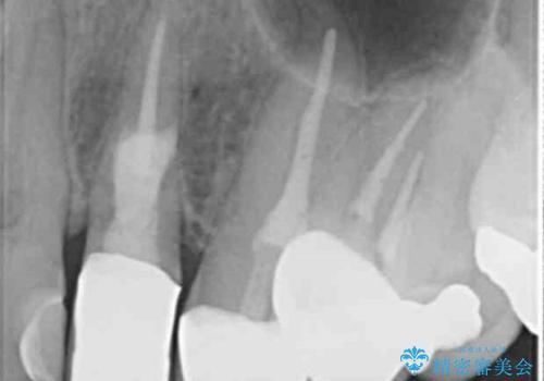 歯の外部吸収 難しい根の治療 30代男性の症例 治療後