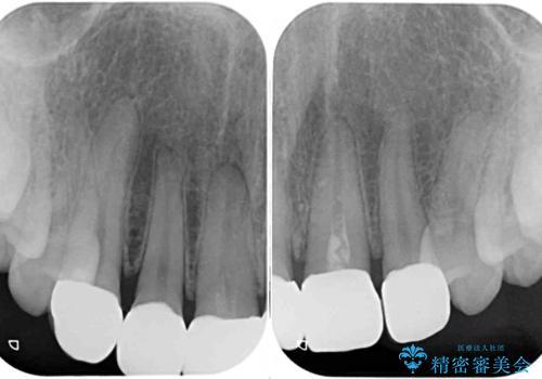 不揃いな前歯のセラミックが気になる オールセラミッククラウンによる補綴治療の治療後