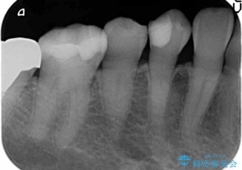 歯が欠けて舌が引っかかる セラミックインレー 50代女性の治療前