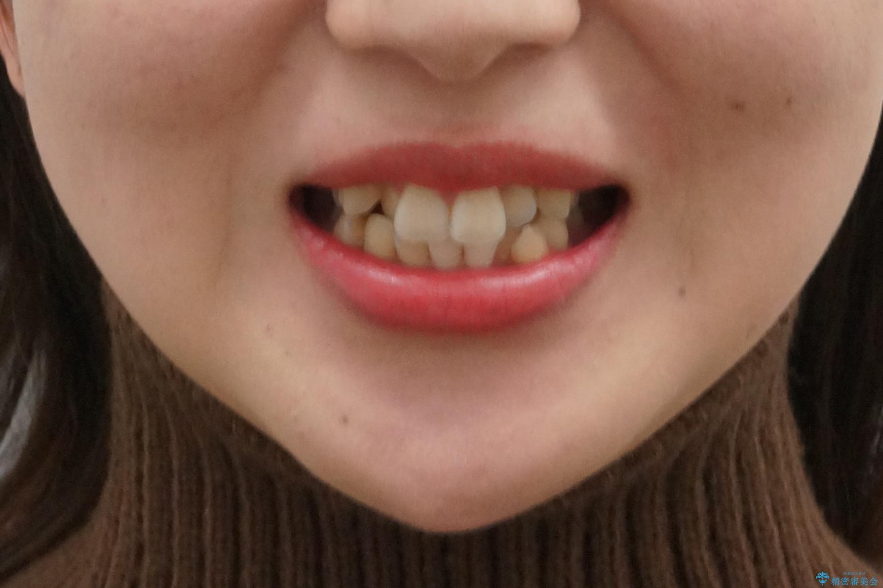 美容整形よりも、自然な美しさを。口元は大事です。の治療前(顔貌)