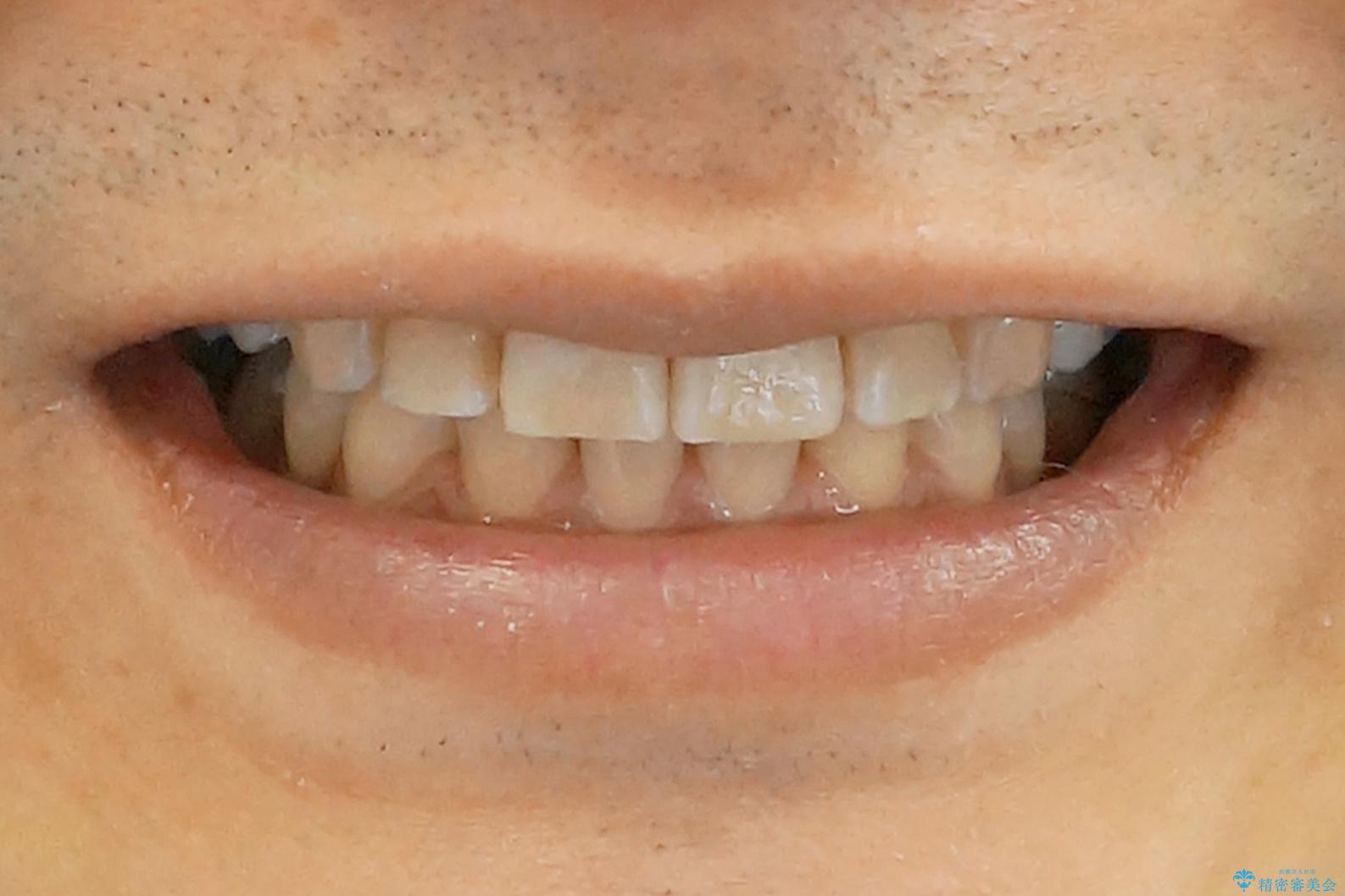 前歯だけ治したい インビザライン・ライト 30代男性の治療後(顔貌)