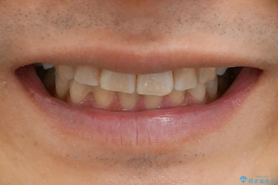 前歯だけ治したい インビザライン・ライト 30代男性の治療前(顔貌)
