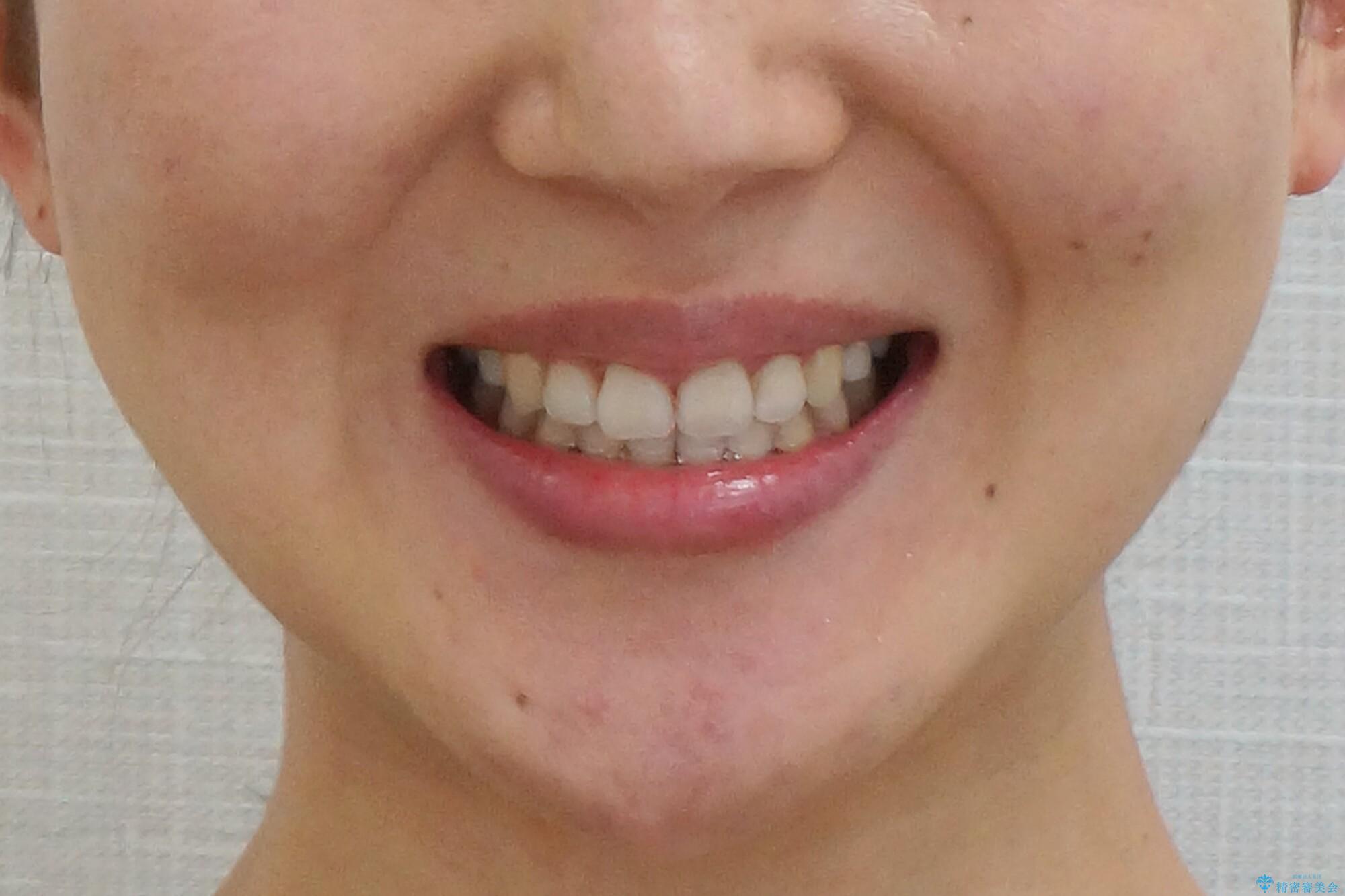 美容整形よりも、自然な美しさを。口元は大事です。の治療後(顔貌)