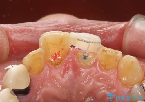 折れた前歯を使えるように、抜かないで残す方法。の治療中
