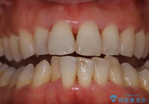 前歯の着色をきれいにの治療前
