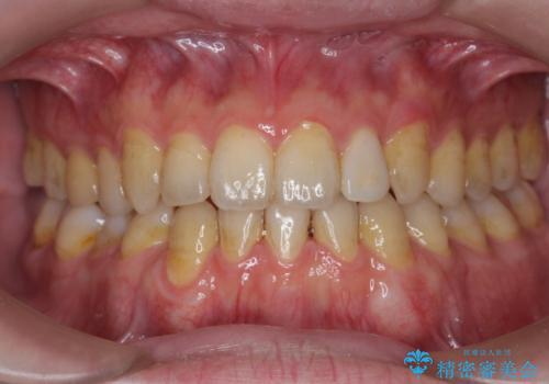 オフィスホワイトニングで、歯を白く爽やかに!の治療前