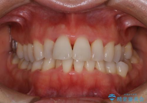 前歯の着色をきれいにの治療後