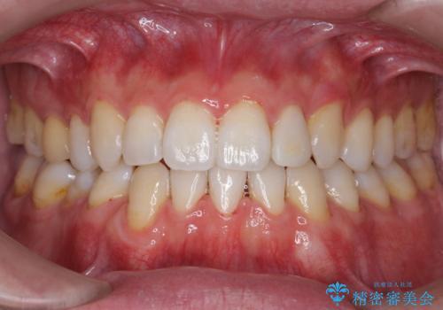 オフィスホワイトニングで、歯を白く爽やかに!の治療後