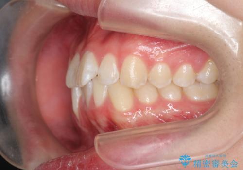 [ Three-incisor ]  歯肉退縮した歯を抜去しマウスピース治療で改善の治療前