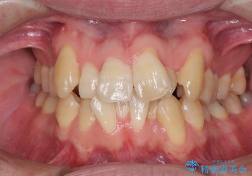 ものが挟まる 著しい叢生を解消 ワイヤー装置による抜歯矯正の症例 治療前