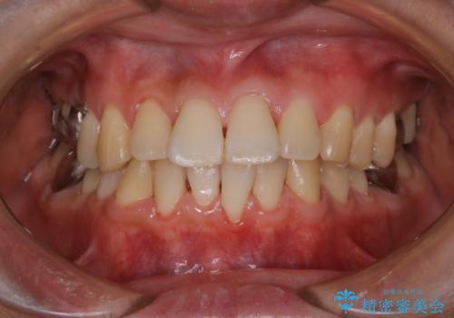 マスクの中で口臭が気になる PMTCで口臭予防の治療後
