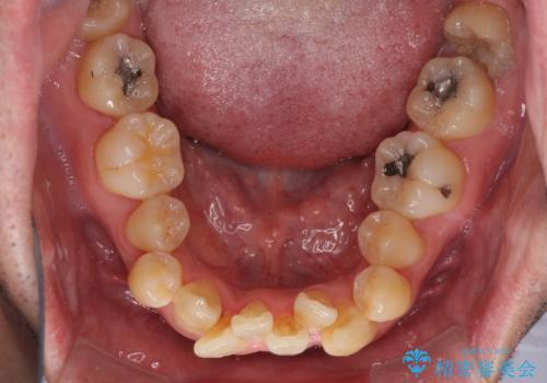 ものが挟まる 著しい叢生を解消 ワイヤー装置による抜歯矯正の治療前