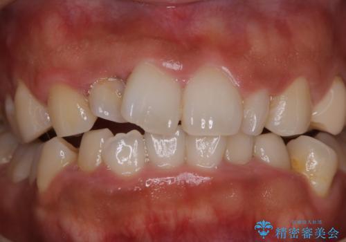 10年以上ぶりに歯のクリーニングの治療前