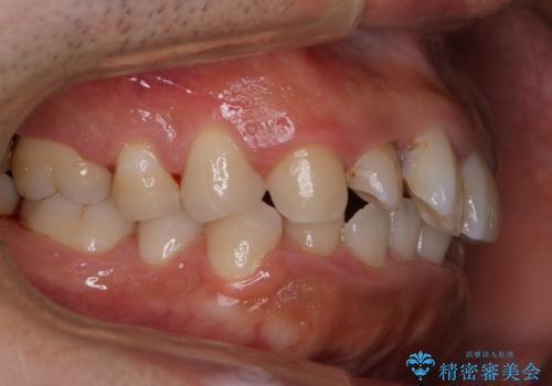 10年以上ぶりに歯のクリーニングの治療後