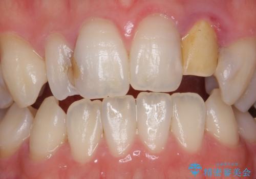 歯の外部吸収 難しい根の治療 30代男性の治療前
