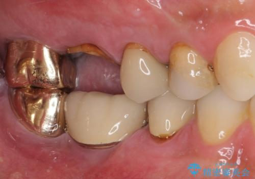 抜歯が必要な左右の奥歯 ブリッジとインプラントによる奥歯の補綴治療の治療前