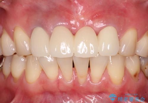 抜かなければいけない前歯 歯肉移植を用いたオールセラミックブリッジの治療後