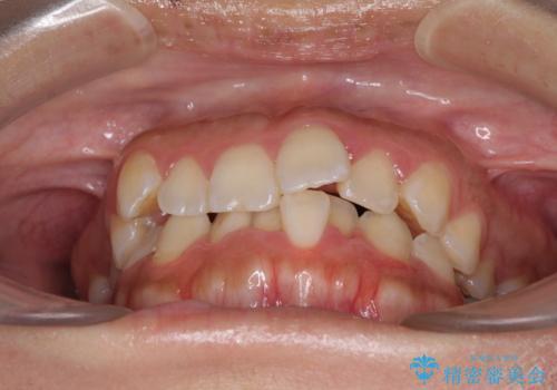 前歯のデコボコをインビザラインでスッキリとの治療前