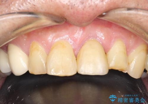 折れた前歯を使えるように、抜かないで残す方法。の治療後