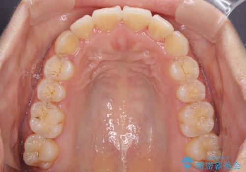 前歯のデコボコをインビザラインでスッキリとの治療中