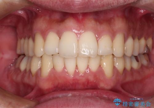 下顎骨が顕著に右側にずれている インビザラインによる咬合改善の症例 治療後