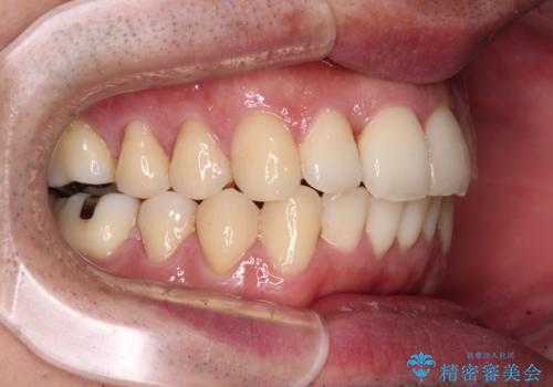 下顎骨が顕著に右側にずれている インビザラインによる咬合改善の治療後