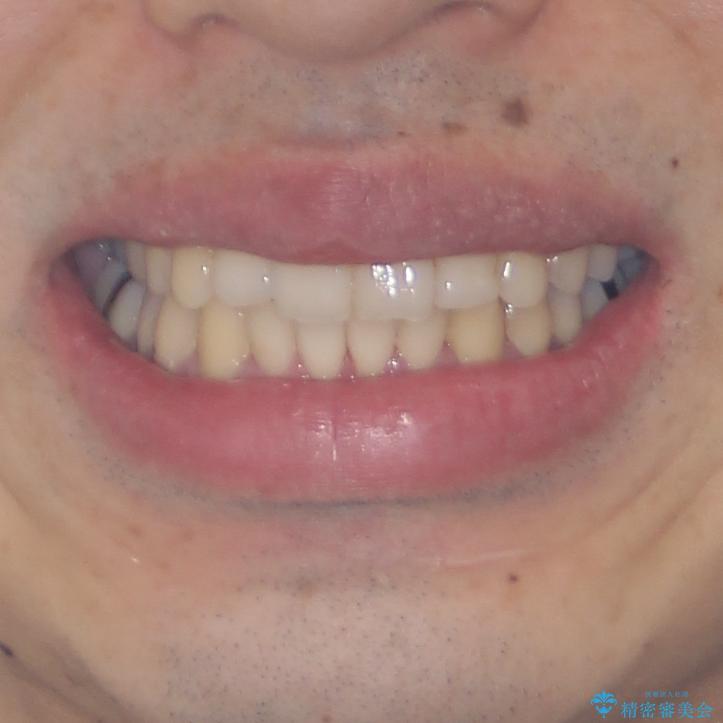 下顎骨が顕著に右側にずれている インビザラインによる咬合改善の治療後(顔貌)