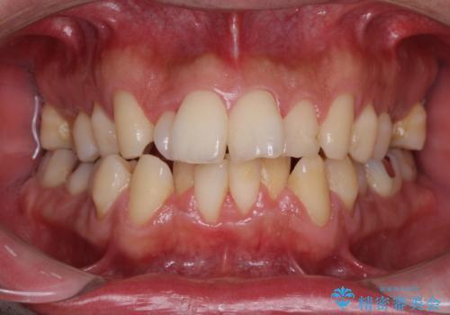 下顎骨が顕著に右側にずれている インビザラインによる咬合改善の症例 治療前