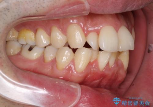 下顎骨が顕著に右側にずれている インビザラインによる咬合改善の治療前