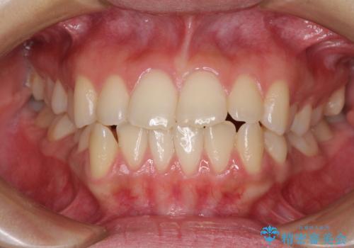 上顎骨拡大を用いたインビザラインによる非抜歯矯正の症例 治療前
