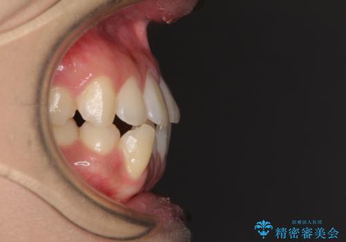 上顎骨拡大を用いたインビザラインによる非抜歯矯正の治療前