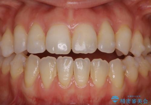 マウスピース矯正中にもPMTCで綺麗な歯を維持の治療前