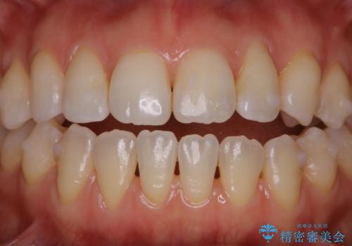マウスピース矯正中にもPMTCで綺麗な歯を維持の治療後