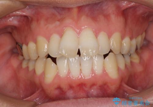 上下前歯が接触しない ワイヤー装置による奥歯の咬み合わせ改善の症例 治療前