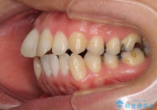 上下前歯が接触しない ワイヤー装置による奥歯の咬み合わせ改善の治療前