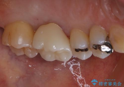 大きな詰め物を被せ物に変えて、歯の破折リスクを減らすの治療後