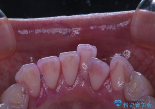 矯正治療が始まる前にクリーニングと歯磨き指導の治療前