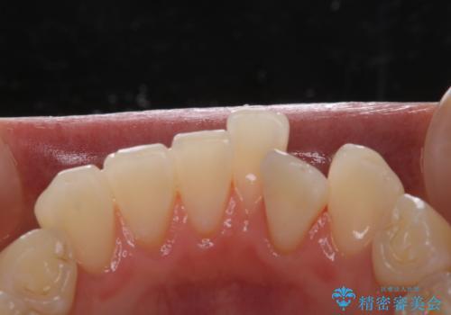 矯正治療が始まる前にクリーニングと歯磨き指導の治療後