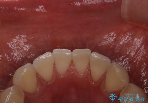 喫煙による着色をPMTCで白い歯にの治療後