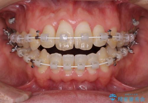 上下前歯が接触しない ワイヤー装置による奥歯の咬み合わせ改善の治療中
