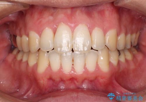 上下前歯が接触しない ワイヤー装置による奥歯の咬み合わせ改善の症例 治療後