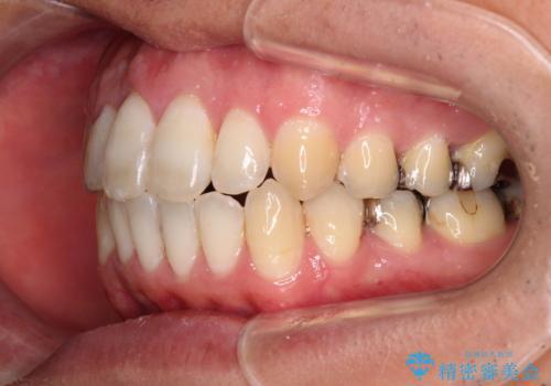 上下前歯が接触しない ワイヤー装置による奥歯の咬み合わせ改善の治療後