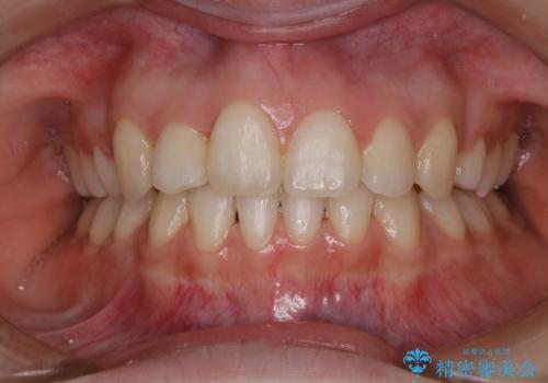 ホワイトニング 1日で真っ白な歯にの治療前