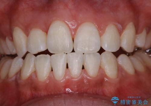 ホワイトニング 1日で真っ白な歯にの治療後